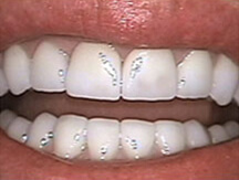 Healthy white smile after porcelain veneers