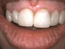 Yellowed and decayed teeth before