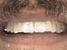 Top front teeth replaced with dental implants