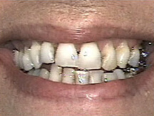 Decayed and damaged teeth