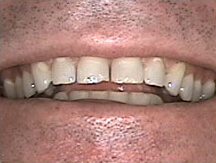 Gapped and worn teeth