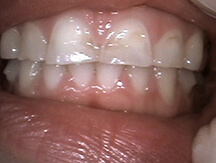 Discolored and damaged front teeth