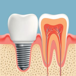 Are you considering dental implants? If you'd like to know more about how they work, your dentist in Scottsdale has the answers.